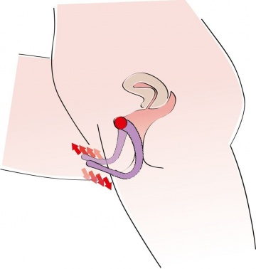 Фиолетовый гибкий фаллоимитатор Intimate Spreader для G-стимуляции